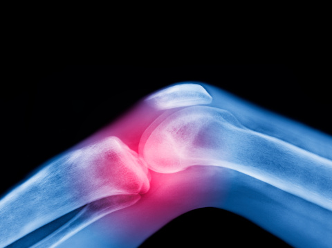 Emotional Stress「X-ray of knee with sports injury」:スマホ壁紙(0)