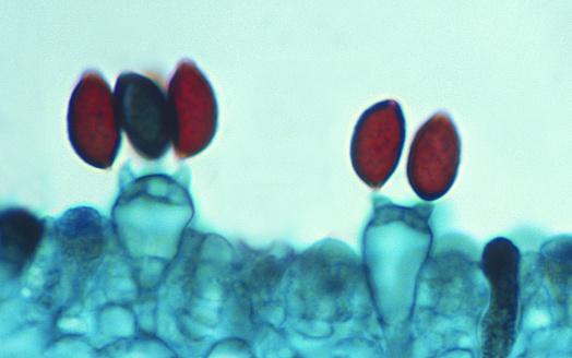 Coprinus「Mushroom Spores--Basidiospores and Basidium, 250X」:スマホ壁紙(6)