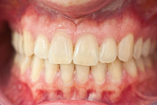 Restoring「set of healthy human dentures - Zähne mit Zahnfleisch」:スマホ壁紙(6)