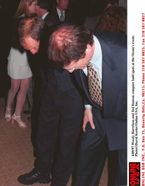 Comparing Bald Spots:ニュース(壁紙.com)
