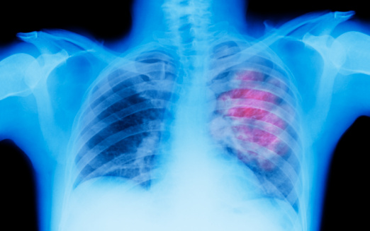 Problems「X-ray of lung showing chest cancer」:スマホ壁紙(13)