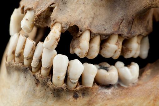 Rotting「Very bad teeth indeed」:スマホ壁紙(11)