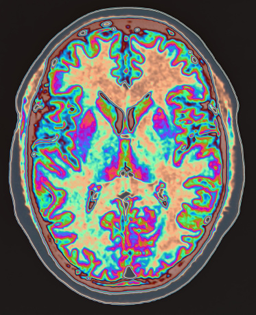 Part Of「MRI scan of brain」:スマホ壁紙(15)