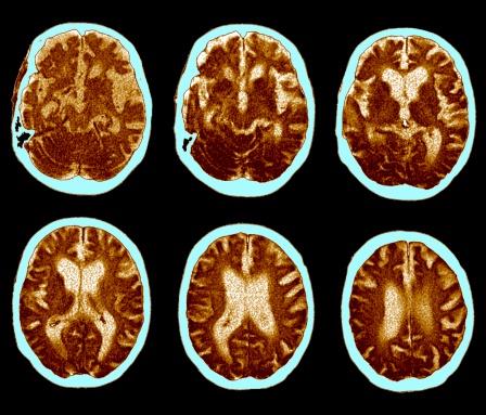 CAT Scan「CAT scan of brain, Alzheimer's disease」:スマホ壁紙(16)