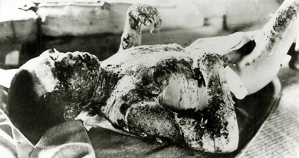 Galerie Bilderwelt「Atomic Bomb Hiroshima」:写真・画像(4)[壁紙.com]