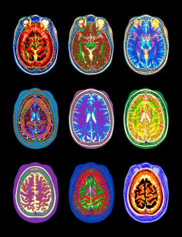 MRI Scan「Nine MRI scans of woman's brain (Digital Enhancement)」:スマホ壁紙(18)