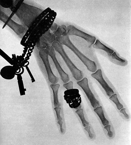 X-ray Image「ONE OF THE FIRST X-RAY PHOTO」:写真・画像(1)[壁紙.com]