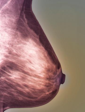 Breast「Normal mammogram」:スマホ壁紙(13)