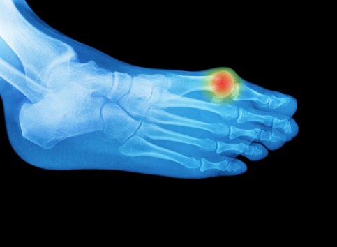 Human Foot「Foot x-ray with an area of pain or swelling」:スマホ壁紙(15)