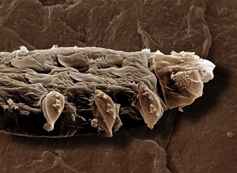 Parasitic「Follicle Mite, Demodex folliculorum」:スマホ壁紙(12)