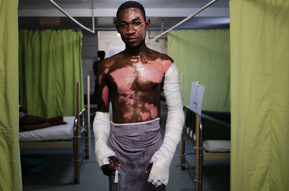 Fireball「Hospital In Port-au-Prince's Impoverished Citi Soleil Neighborhood Specializes In Treatment Of City's Burn Victims」:写真・画像(12)[壁紙.com]