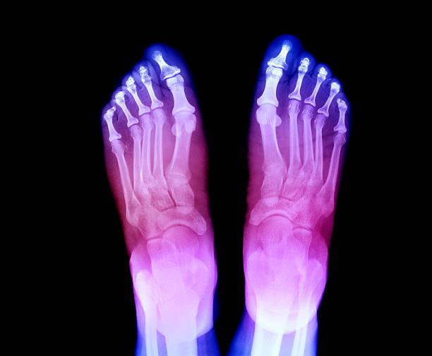 X-ray of feet showing Arthritis:スマホ壁紙(壁紙.com)