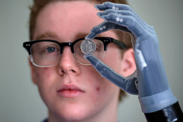 First Person In The UK To Be Fitted With The I-limb Ultra Revolution Bionic Hand.:ニュース(壁紙.com)