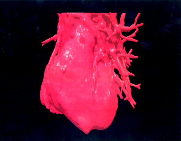 Heart「Three Dimensional (3 D Image Displays A Computerised Visualization Of A Human Heart」:写真・画像(1)[壁紙.com]