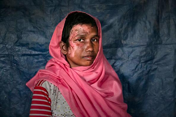 写真「Rohingya Rape Survivors Speak Out At Bangladesh's Refugee Camps」:写真・画像(14)[壁紙.com]