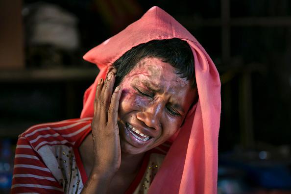 Physical Injury「Rohingya Rape Survivors Speak Out At Bangladesh's Refugee Camps」:写真・画像(17)[壁紙.com]