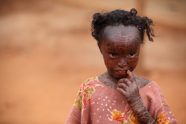Waiting In Line「Displaced People At Dadaab Refugee Camp As Severe Drought Continues To Ravage East Africa」:写真・画像(7)[壁紙.com]