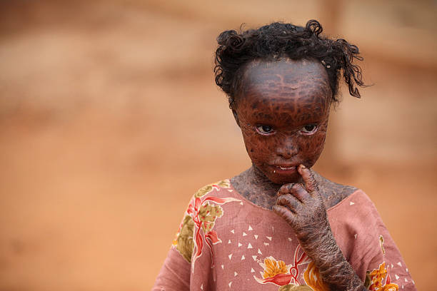 Displaced People At Dadaab Refugee Camp As Severe Drought Continues To Ravage East Africa:ニュース(壁紙.com)