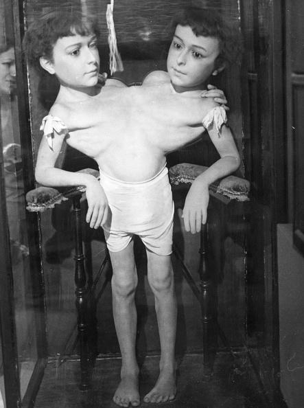 Biology「Siamese Twins」:写真・画像(16)[壁紙.com]
