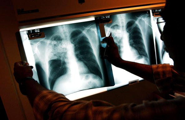 X-ray Image「Healthcare Workers Fight TB In The Inner City」:写真・画像(0)[壁紙.com]