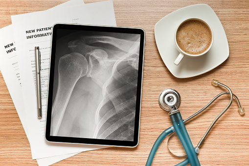 Electronic Organizer「Hospital going digital by using tablet to display x-rays」:スマホ壁紙(19)