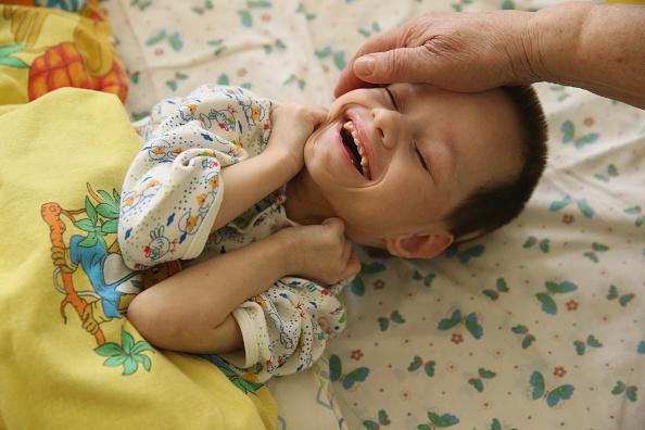Disability「Congenital Defects, Chernobyl's Uncertain Legacy」:写真・画像(17)[壁紙.com]