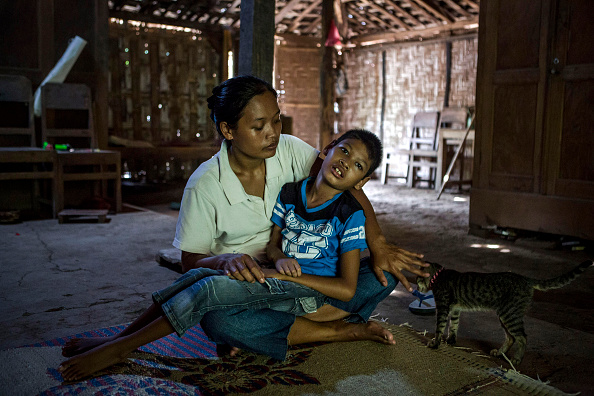 写真「Mentally Ill Indonesians Living Under Shackles In Down Syndrome Village」:写真・画像(8)[壁紙.com]
