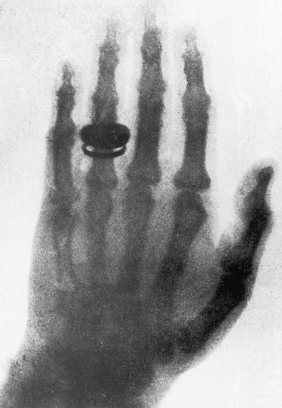 Physicist「Early X-Ray」:写真・画像(2)[壁紙.com]