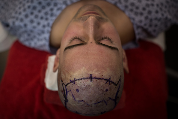 Transplant Surgery「Health Tourism In Turkey A Booming Industry」:写真・画像(17)[壁紙.com]