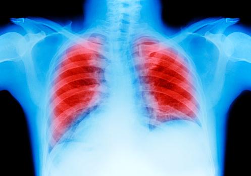 Human Internal Organ「Lung cancer chest X-ray」:スマホ壁紙(18)