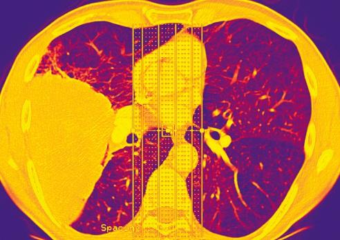 Oncology「Lung cancer」:スマホ壁紙(14)