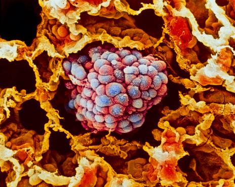 Cancer Cell「Lung cancer, close-up」:スマホ壁紙(13)