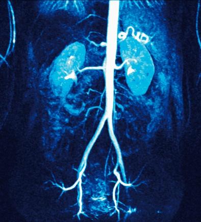 Human Abdomen「Renal Arteries」:スマホ壁紙(3)