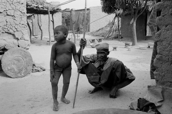 Tom Stoddart Archive「River Blindness」:写真・画像(0)[壁紙.com]