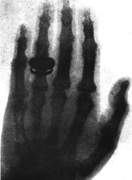 X-ray Image「1st Radiography : the hand of Alfred von Kolliker, taken on janaury 23, 1896 by Wilhelm Conrad Rontgen (1845-1923) who discovered X-rays」:写真・画像(17)[壁紙.com]