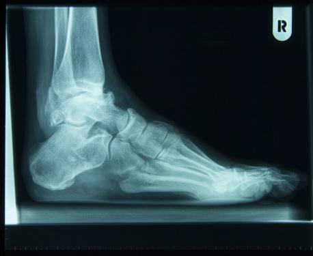 Amsterdam「x-ray of right foot」:スマホ壁紙(8)