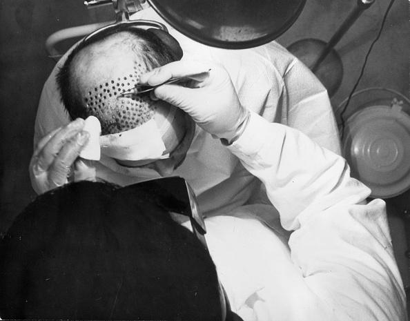 Transplant Surgery「Hair Transplant」:写真・画像(16)[壁紙.com]