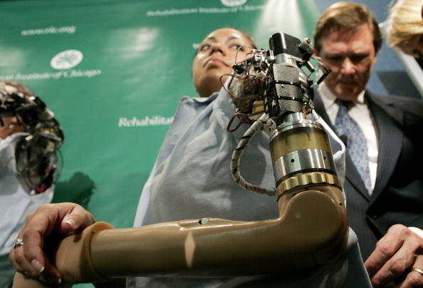 "Computer Programmer「First ""Bionic Woman"" Demonstrates Thought-Controlled Prostheses」:写真・画像(2)[壁紙.com]"