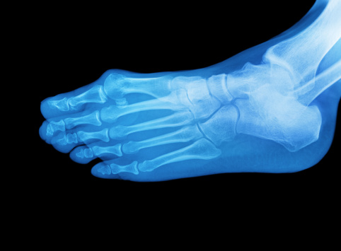 Human Foot「X-ray of a foot」:スマホ壁紙(8)