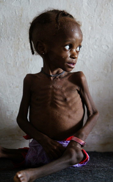 Staring「Feeding center in Liberia」:写真・画像(9)[壁紙.com]