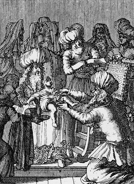 Circumcision「Circumcision of 8 day old baby boy according to the Jewish custom」:写真・画像(11)[壁紙.com]