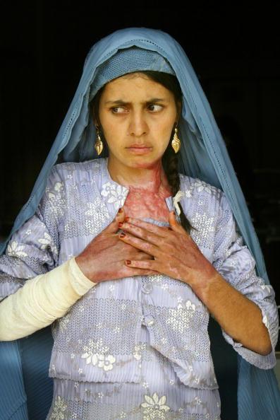 Self-Immolation「Desperation Drives Women To Self Immolation In Herat」:写真・画像(5)[壁紙.com]