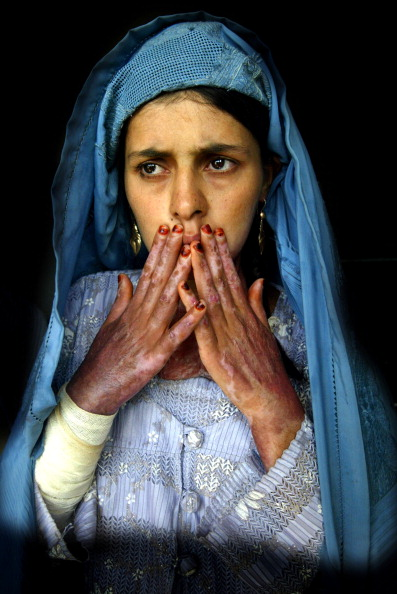 LegacyCollection「Desperation Drives Women To Self Immolation In Herat」:写真・画像(19)[壁紙.com]