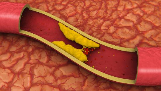 Cholesterol「Clogged Artery (3D)」:スマホ壁紙(4)