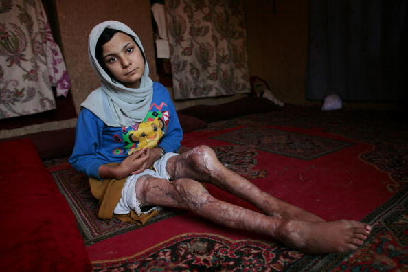Self-Immolation「Desperate Afghan Women Attempt Suicide By Self-Immolation」:写真・画像(16)[壁紙.com]