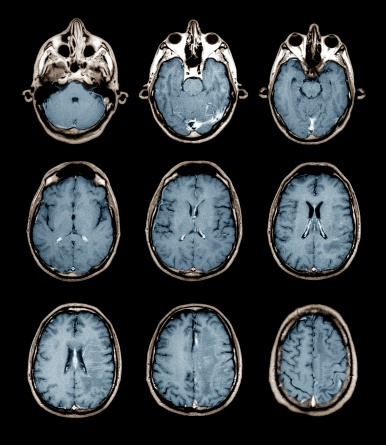 Medical Scan「Normal brain, MRI scans」:スマホ壁紙(6)