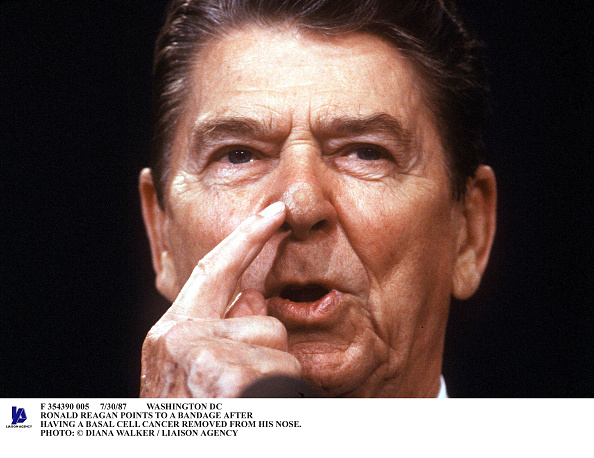 Removing「Ronald Reagan Points To A Bandage After Having A Basal Cell Cance」:写真・画像(10)[壁紙.com]