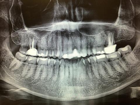 ドクロ「X-ray of teeth」:スマホ壁紙(7)