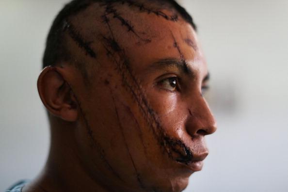 Honduras「Violence and Grief Define Life In Honduran Capital」:写真・画像(17)[壁紙.com]
