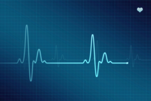 Heart「EKG - Electrocardiogram (XXL)」:スマホ壁紙(15)